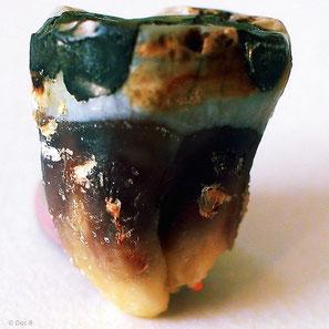 Amalgam: Sichere Entfernung in der Zahnarztpraxis Dr. Simon Müller in Kastellaun. Test der Amalgam-Ersatzmaterialien und Schwermetall-Entgiftung durch kooperierende Therapeuten.
