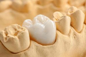 Zahnarztpraxis Domsch Zahnersatz