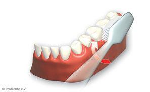 2. Außenflächen der Zähne von hinten links bis rechts hinten oben und unten putzen.