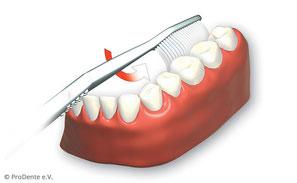 3. Innenflächen der Zähne von hinten links bis rechts hinten oben und unten putzen.