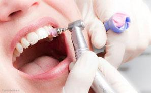 Die beste Maßnahme gegen Mundgeruch ist die regelmäßige Professionelle Zahnreinigung beim Zahnarzt. (© proDente e.V.)