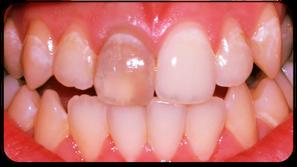 Einzelner dunkler Zahn mit abgestorbenem Zahnnerv (© Foto: Doc R)