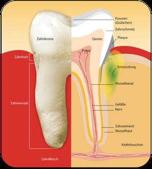 Wie Parodontose entsteht (© proDente e.V.)