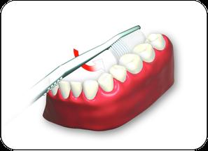 3. Innenflächen der Zähne von hinten links bis rechts hinten oben und unten putzen. (© proDente e.V.)Dr. Udo Goedecke. Zahnarzt in Osnabrück