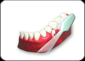 2. Außenflächen der Zähne von hinten links bis rechts hinten oben und unten putzen. (© proDente e.V.)Dr. Udo Goedecke. Zahnarzt in Osnabrück