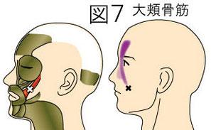 大頬骨筋トリガーポイントによる頭痛と顔の痛み