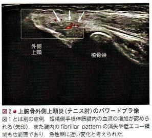 上腕骨外側上顆炎(テニス肘)のパワードプラ像