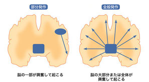 Image:てんかんinfo