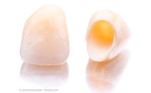Zahnkronen zum Schutz der Zähne