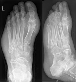 Gichtfuß im Röntgenbild