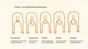 Hoden- u. Hodensackausbildung