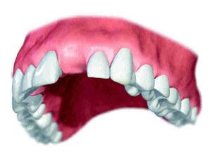 OK Zahnverlust