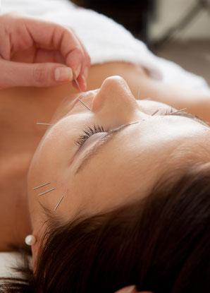 身体に眠る自然治癒力を呼び起こす、美容鍼