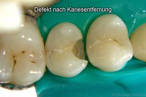 Zahndefekt nach entfernter Karies