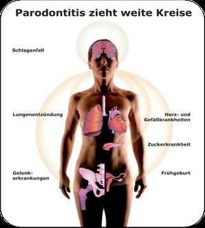 Gesundheitsgefahren durch Parodontose (© proDente e.V.)