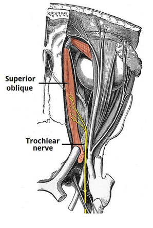 trochlear nerve tract