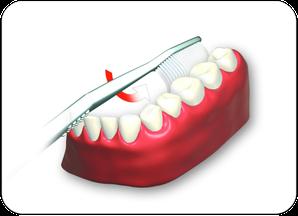 3. Innenflächen der Zähne von hinten links bis rechts hinten oben und unten putzen. (© proDente e.V.)