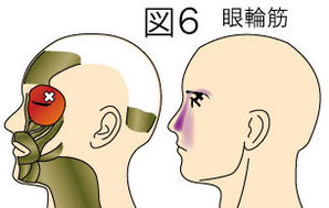 眼輪筋トリガーポイントによる顔の痛み