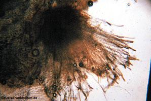 Mikroskopische Aufnahme des Wasserschimmels Achlya sp., 100fache Vergrößerung. Foto: Dr. Gerald Bassleer