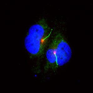 Pigmentzellen (blau/grün) mit Zilie (hellgrün mit roter Basis) (Foto: Daniel Zingg, Netherlands Cancer Institute)