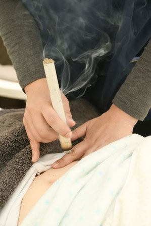 逆子鍼灸治療で逆子が治る治療回数について。