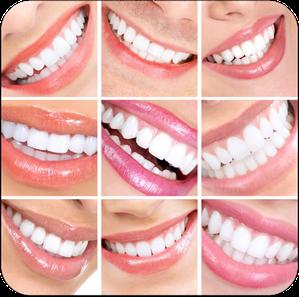 Mit Veneers bleiben Zähne dauerhaft schön und weiß. (© Kurhan - Fotolia.com)