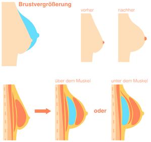 Erklärung Brustvergrößerung
