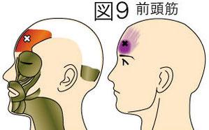 前頭筋トリガーポイントによる頭痛