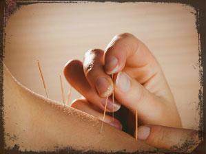 Akupunktur Visp