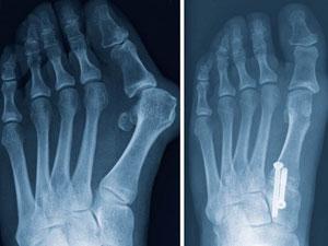 Cirugia de juanete, técnica campo abierto, radiografía donde se muestra el antes y el despues. Murcia