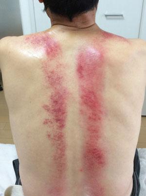 急性腰痛(IASTM後)