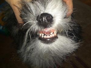 Shadow mit Zahnlücke