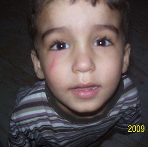 Marques au visage d'Abdullah