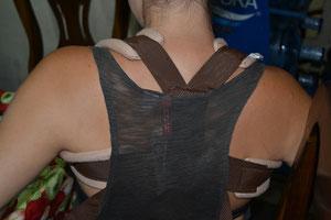El nuevo vendaje, mucho más cómodo