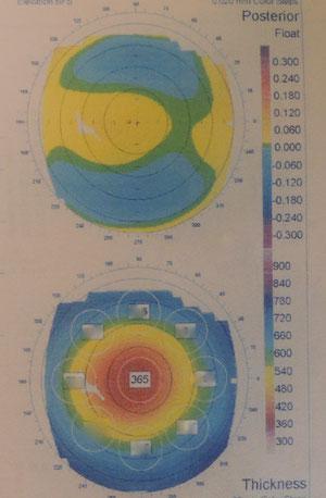 トポグラフィー(実物)。角膜の形状を色で判断する図なのでカラーじゃないと何の役にも立ちません・・・。
