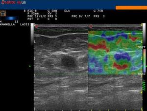 Cisti (tre strati di colori diversi) - http://medicalidea.jimdo.com - Vendita Ecografi Usati