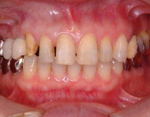 ラミネートベニア形成時。右上の糸切り歯は従来のクラウン形成。(全体的にかぶせるタイプ)ベニアの形成量の少なさが比較できる。