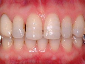 矯正治療終了時。ここから歯の形態異常の修正