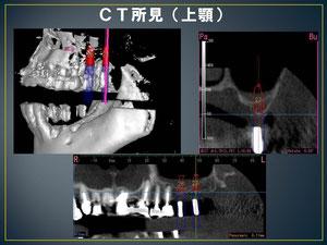CT画像を解析して、慎重にインプラントを植立する部分を決めます。