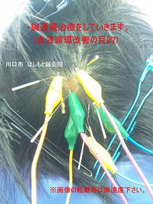 鍼に電気を流していきます。血液循環を改善する目的です。