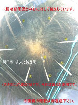 基本的な鍼治療は画像のようになります。