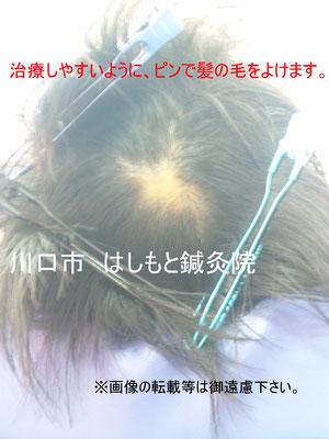 髪の毛を分けて、治療の準備です。