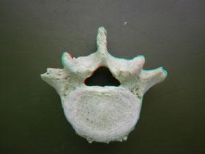 Vértebra dorsal