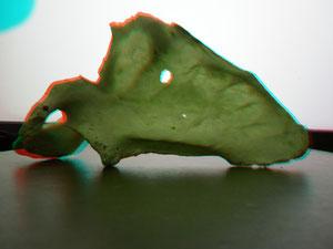 Escápula (visión anterior)