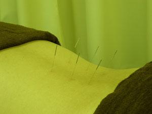 つるかめ鍼灸養生院の腰痛治療例