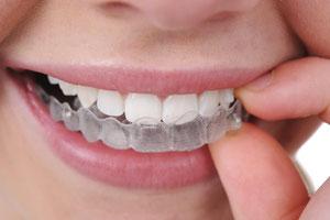 apparecchi fissi mobili e estetici per allineare i denti