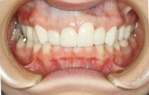 仮歯に交換