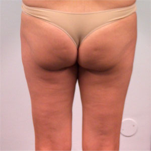 la cellulite: secondo stadio