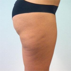 la cellulite: terzo stadio