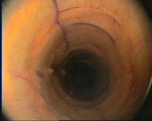 Trachea (Luftröhre) mit wenig Sekret